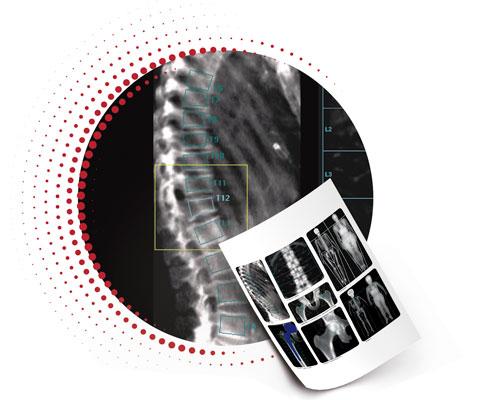 Avaliação vertebral com densitometria por emissão de raios X de dupla energia (DVA)