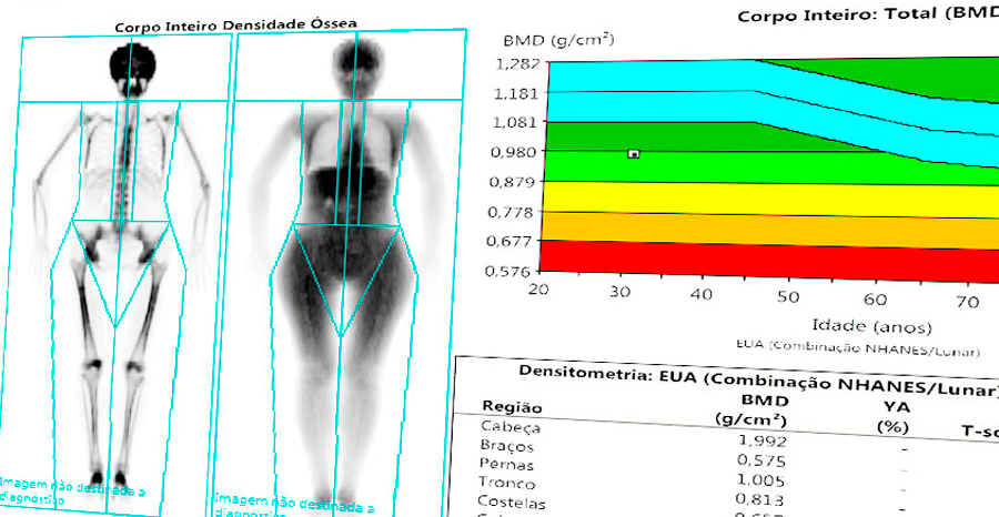 Densitometria de Composição Corporal