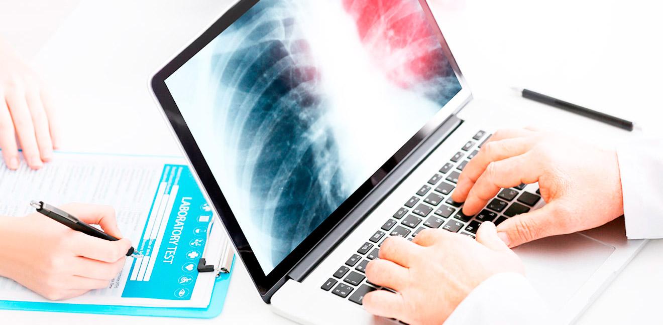 Raio X Digital DR